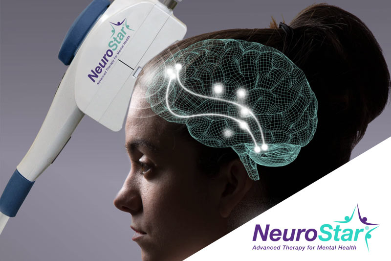 Ascend TMS NeuroStar TMS Therapy Willowbrook